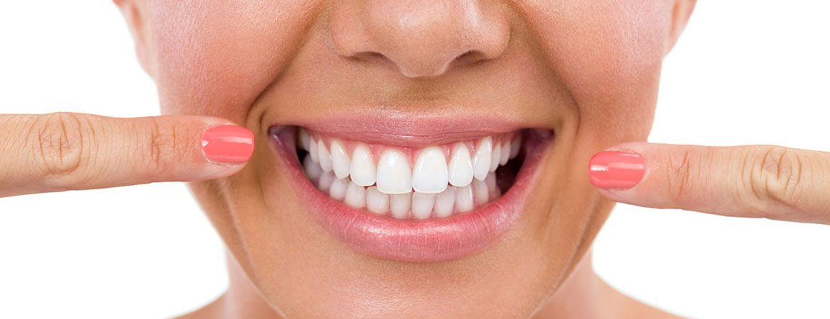 How Safe is Teeth Whitening?