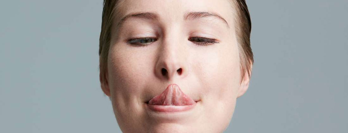 macroglossia-all-you-need-to-know-about-it