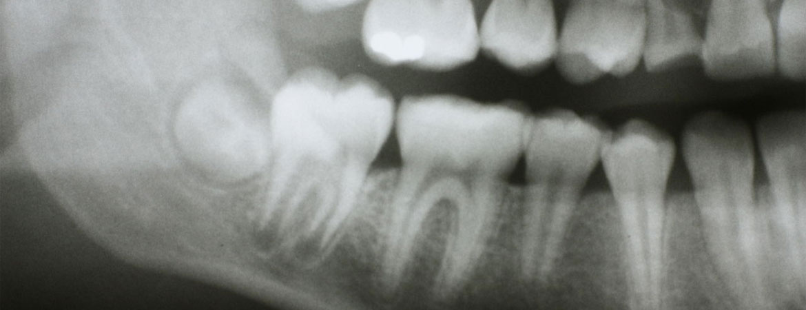 should-you-say-no-to-dental-x-rays