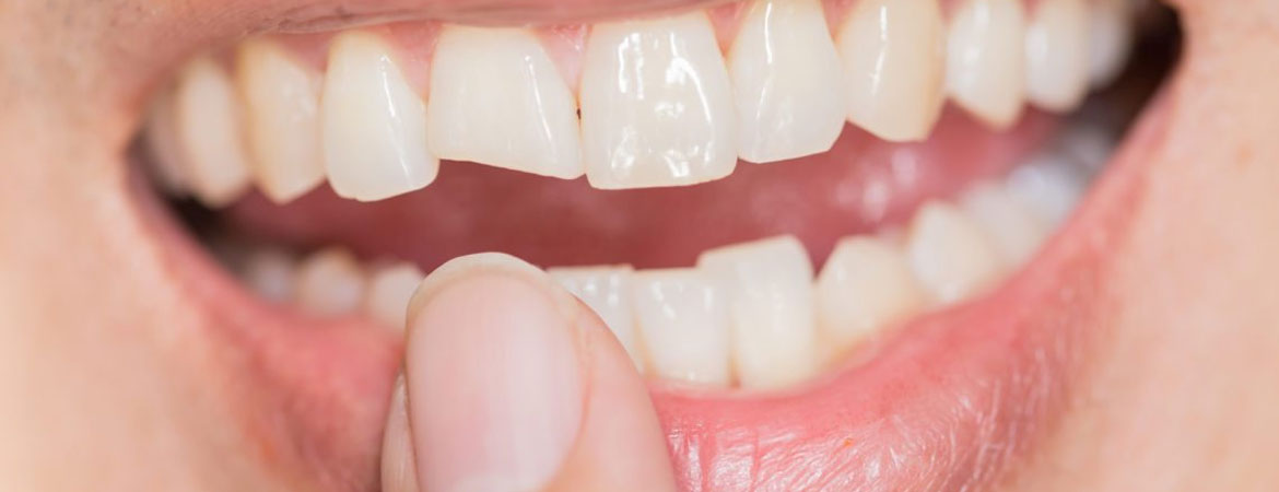 three-ways-to-get-a-chipped-tooth-fixed