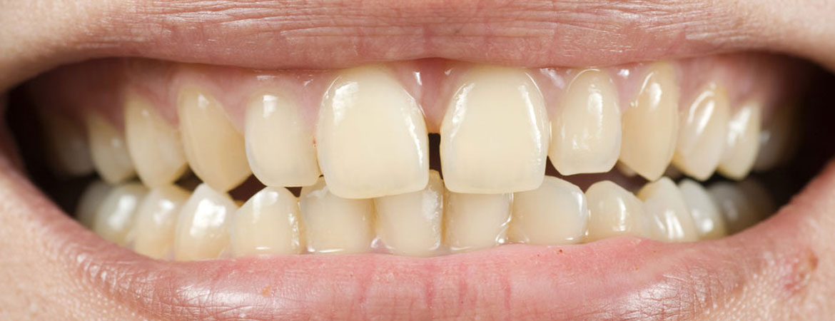 tooth-enamel-loss-prevention-tips